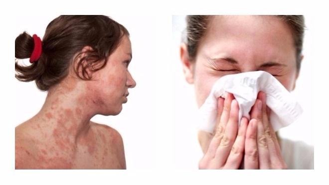 Первые признаки аллергии при употреблении винограда