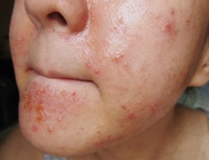 Варианты лечения аллергической реакции